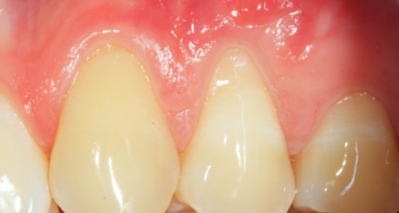 Formation courte chirurgie micro-gingivale Université Nice