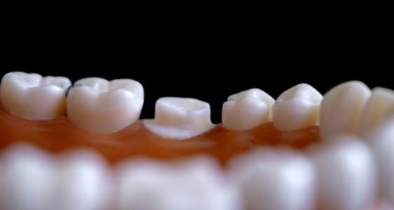DU Parodontologie Implantologie
