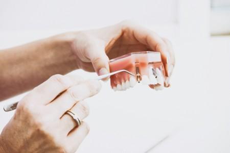 DU Prothèses sur Implants